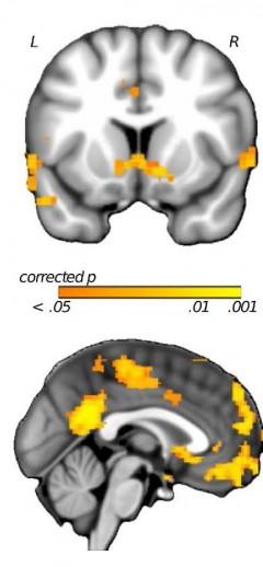 스스로 통제할 수 있는 장애물을 만난 학생들은 그렇지 않은 학생들보다 위에 보이는 뇌 부위의 활동성이 줄어든다. - Jamil P. Bhanji 제공